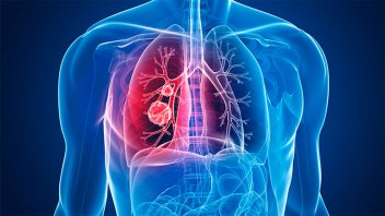 ANMAT aprobó fármaco que elimina rastros de cáncer de pulmón en gran porcentaje