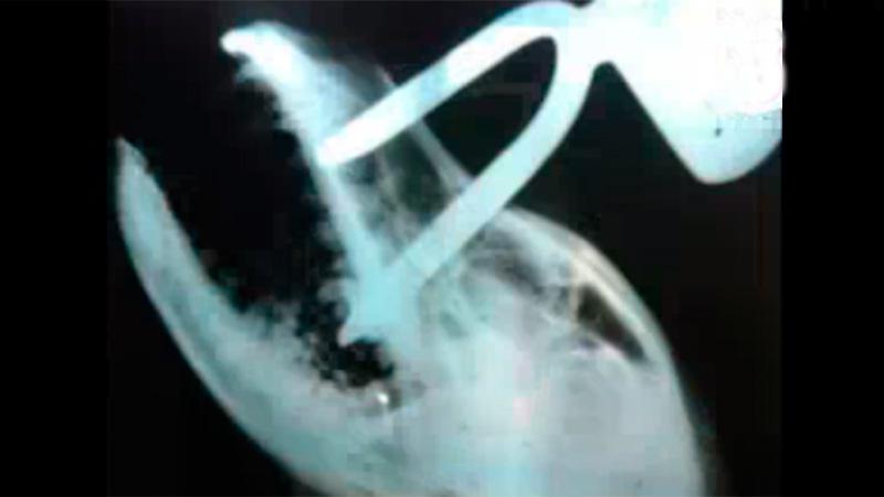 La radiografía del daño que le hicieron a Pacho