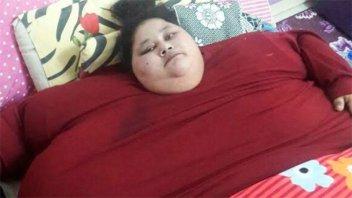 Falleció la mujer egipcia que llegó a pesar 500 kilos