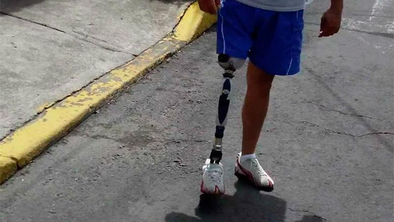 La prótesis cuesta 150 mil pesos. (Ilustrativa).-