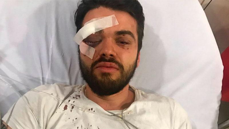Jonathan Castellari, agredido la semana pasada