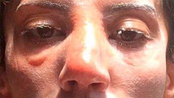 Natacha Jaitt denunció que su expareja la agredió y publicó impactante foto