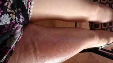 Joven sufrió quemaduras al pincharse la funda