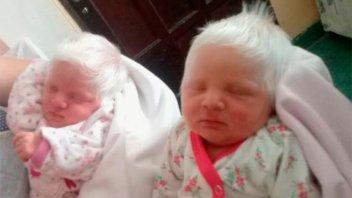 Dos copos de nieve: Nacieron mellizas albinas