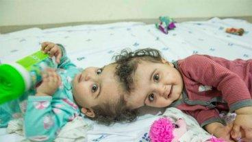 Operaron con éxito a dos nenas siamesas unidas por la cabeza