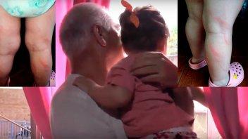 Madre castigó a cintarazos a su hijita y la dejó renga: El abuelo la denunció