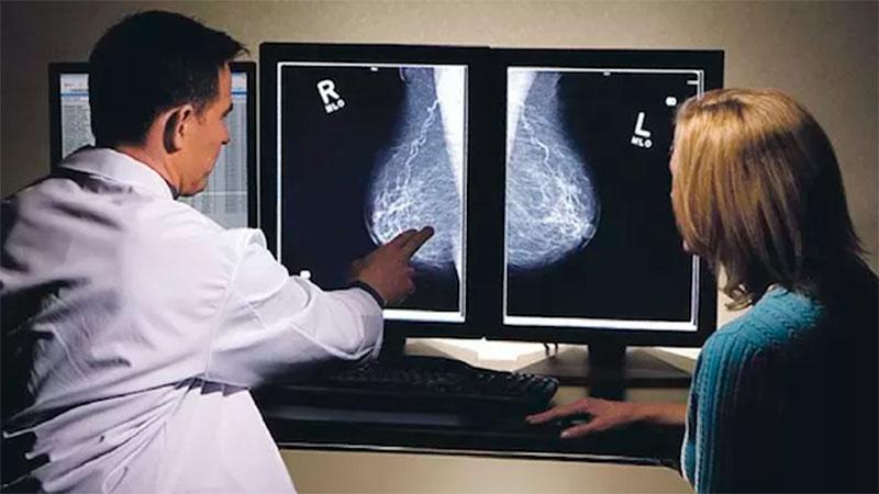 Promueven detección temprana de cancer de mama en Guadalajara