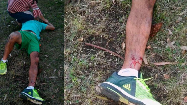 Un jugador fue baleado después de un partido de fútbol