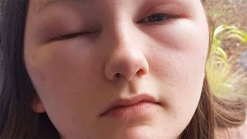 Usó reconocida marca de tintura y denunció que quedó con quemaduras y ceguera