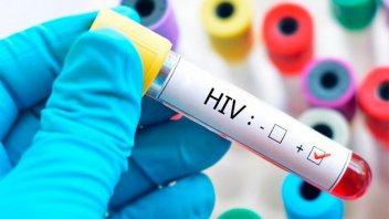 Hallaron una fórmula para eliminar del organismo las células infectadas con HIV