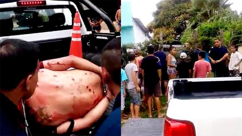 Las marcas de las balas de goma en la espalda de uno de los ladrones