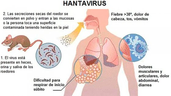 Confirmaron que un hombre murió por Hantavirus en Entre Ríos