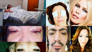Divertidos posteos de Lizy Tagliani para mostrar cómo quedó tras la operación
