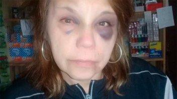 Sufrió brutal golpiza durante un robo: Ladrones le dijeron que era su