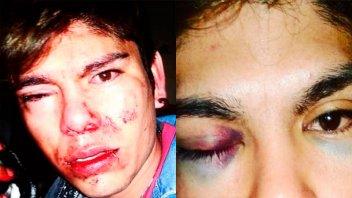 Brutal golpiza a joven de 19 años