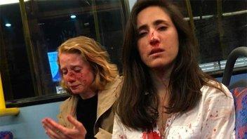 Al menos cinco detenidos por el ataque homófobo a una pareja de mujeres