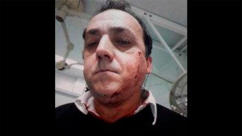 Remisero recibió un puntazo a centímetros de un ojo en un asalto