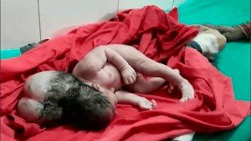 Nació una beba con