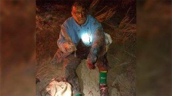 Luchó contra un puma para salvar a su perro: Mató al felino y quedó malherido