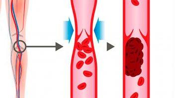 Trombosis: Cómo detectar señales de advertencia