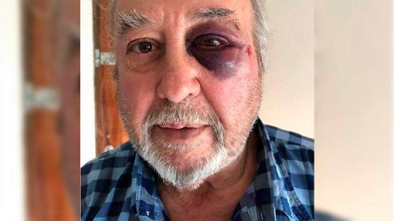 Asaltante golpeó en el rostro a hotelero tras robarle $20 que había en la caja