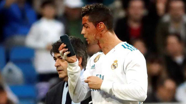 La insólita reacción de Cristiano Ronaldo tras sufrir un corte en el gol