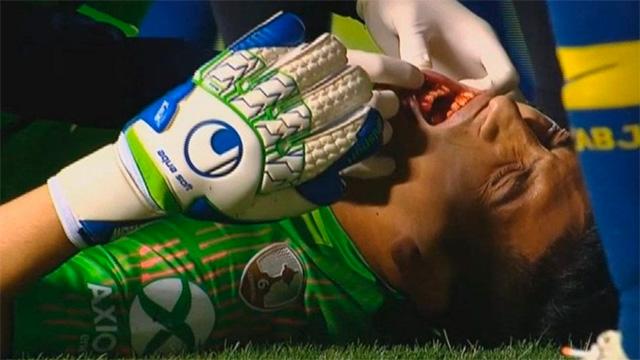 Boca se queda sin su arquero titular: Andrada sufrió fractura de maxilar